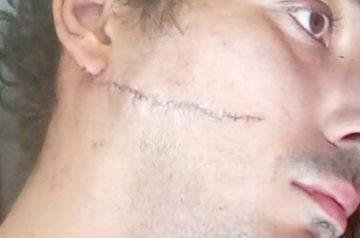 """Un couple homosexuel Bordelais attaqué au couteau  : """"On a entendu sales pédés quand on s'est fait agresser"""""""